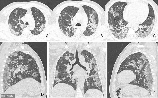 shocking chest X-rays of coronavirus